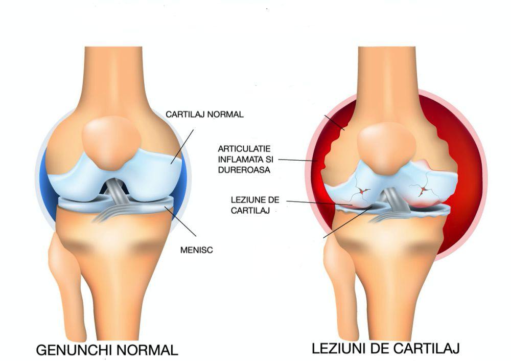 Reconstructia cartilajului articular cu matrice biologica artificiala | blumenonline.ro