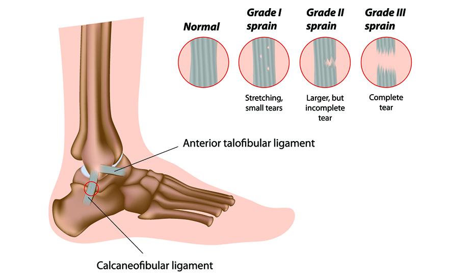 ruperea parțială a ligamentelor tratamentului articulației gleznei drepte