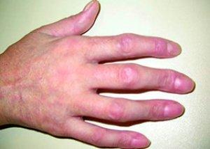 sigidina I. o boală difuză a țesutului conjunctiv ameliorați rapid inflamația articulațiilor degetelor