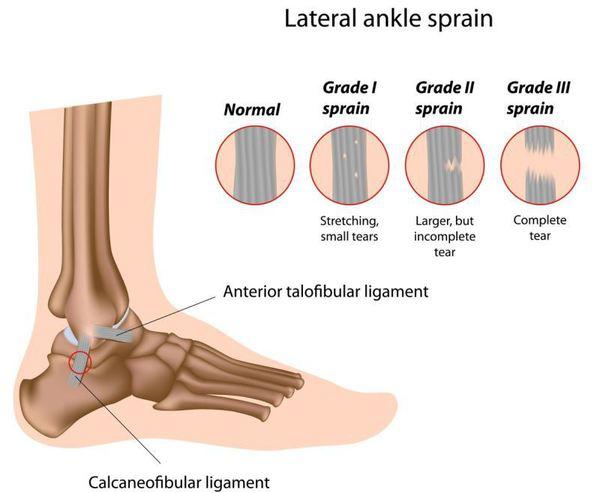 simptome de entorsă a genunchiului