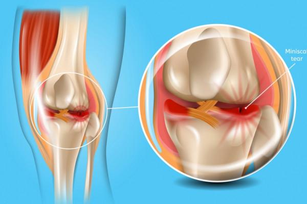 Simptomele bolii meniscului la genunchi