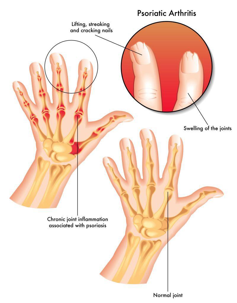 simptomele și tratamentul artrozei psoriazice