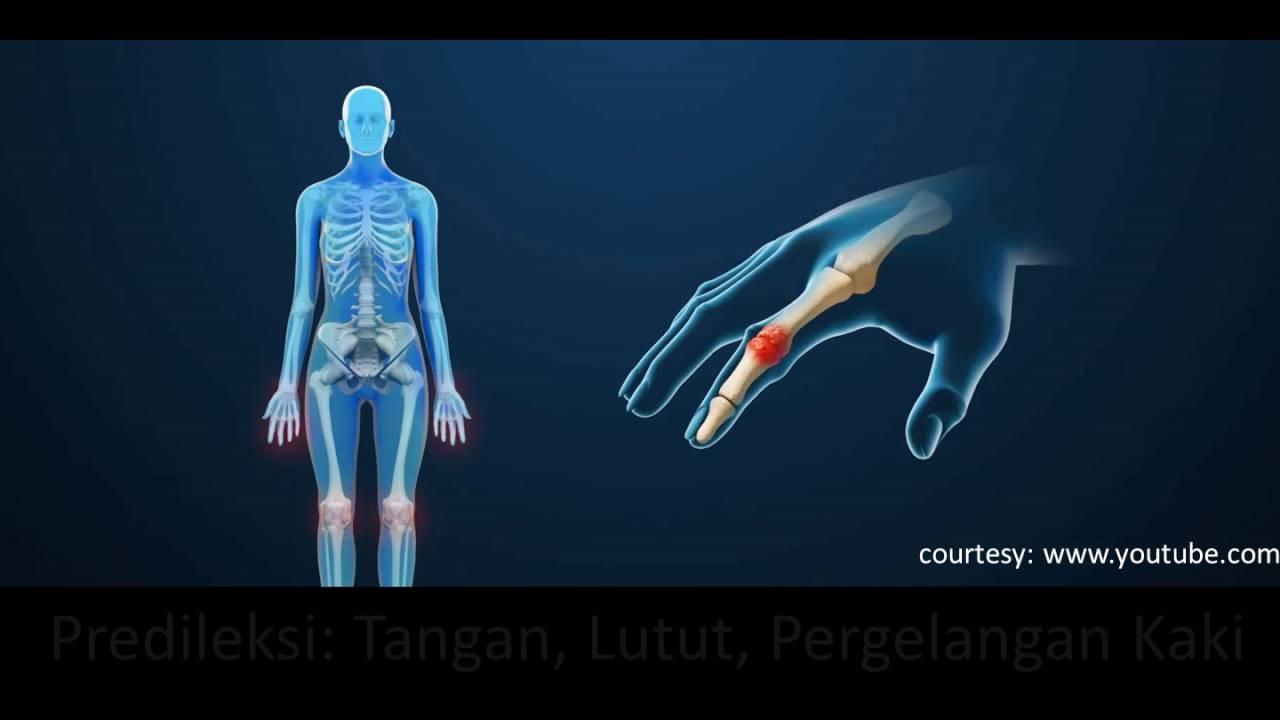Durerea articulara – elemente practice – Dr. Alin Popescu