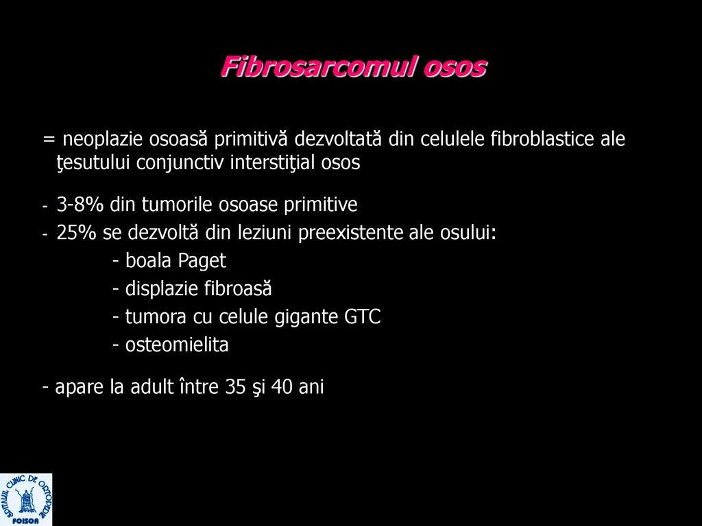 simptomele tratamentului cu trocharterita șoldului tratamentul artrozei în navete