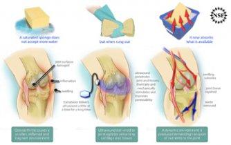 tratament termic articular)