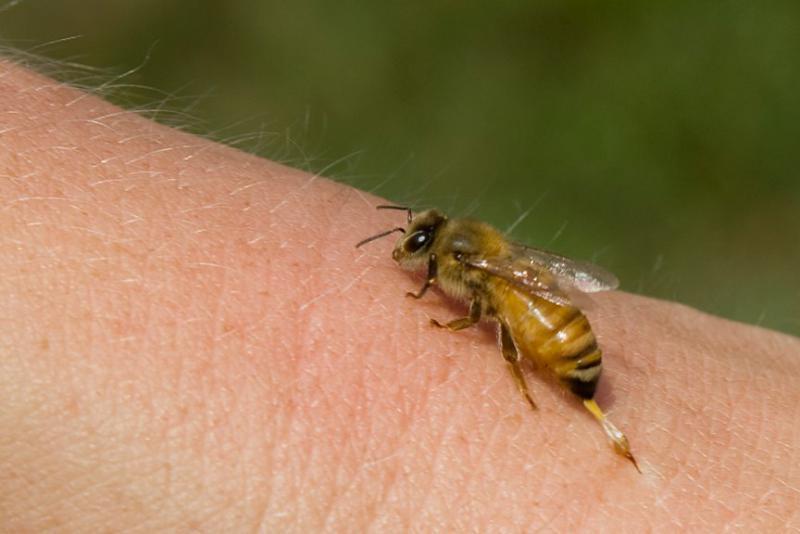 tratamentul articulației înțepăturii de albine)
