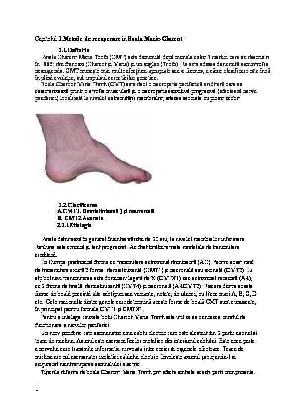 Tratamentul articulațiilor cu charcot