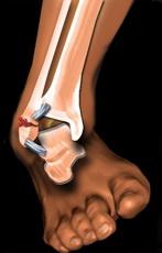 tratamentul artrozei după fractura gleznei)