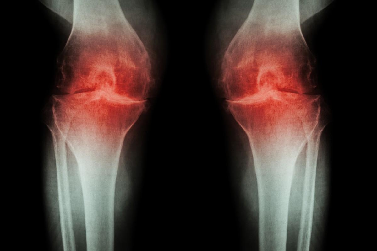 tratamentul artrozei piciorului nutriție