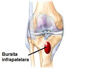 artroza deformantă a tratamentului articulației genunchiului drept recenzii de unguent cu condroitină glucozamină