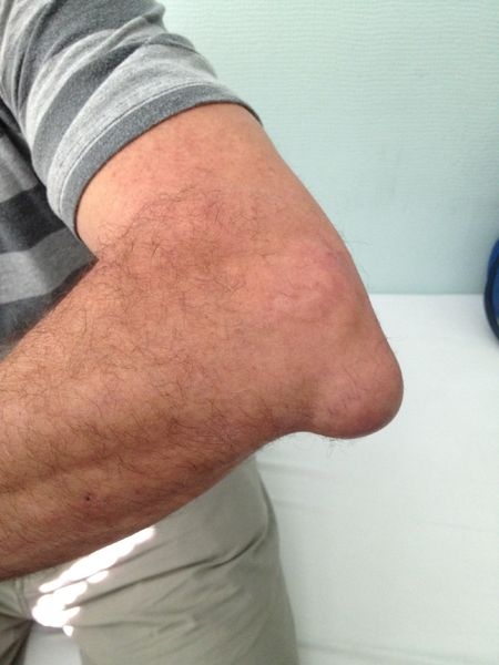tratamentul bursitei traumatice a articulației cotului)
