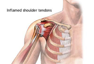 tratamentul durerii severe cu artroză