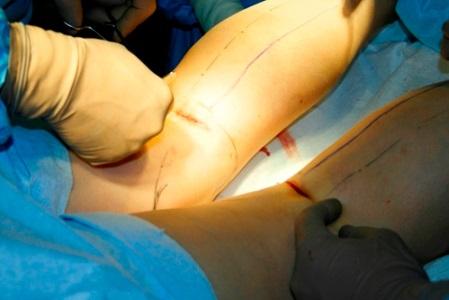 tratamentul curburii genunchiului