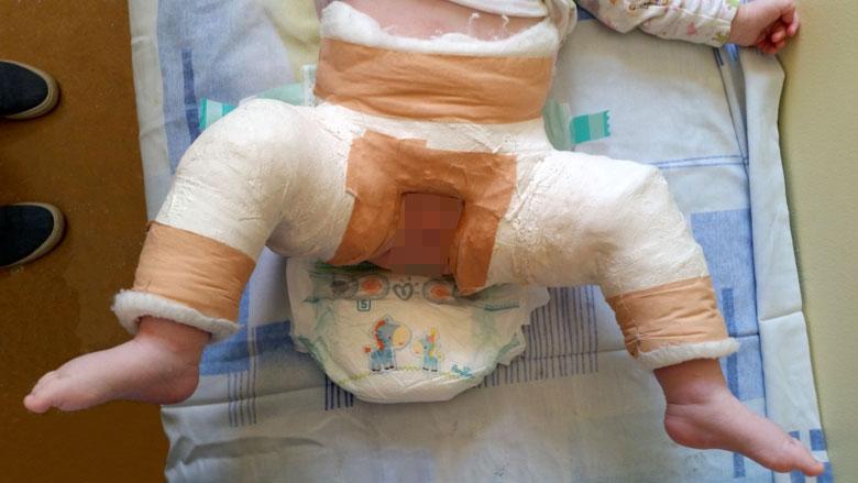 tratamentul displaziei de șold în 2 ani