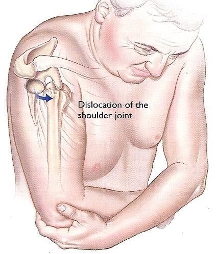 tratamentul musculaturii umărului
