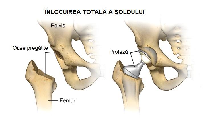 tratamentul simptomelor fracturii de șold