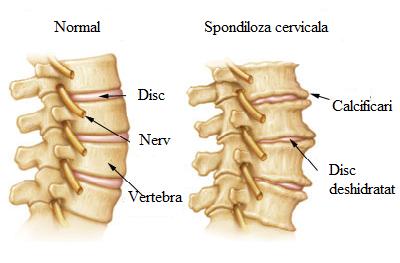 tratamentul spondilartrozei articulației intervertebrale)