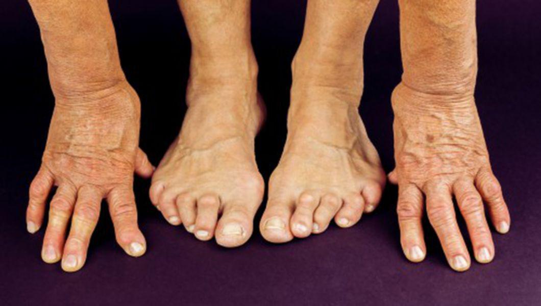 tratează artrita reumatoidă