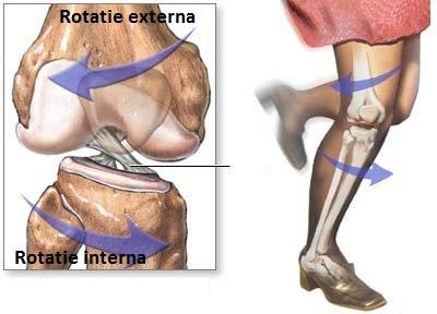 traumatisme la menisc și ligamente ale articulației genunchiului)