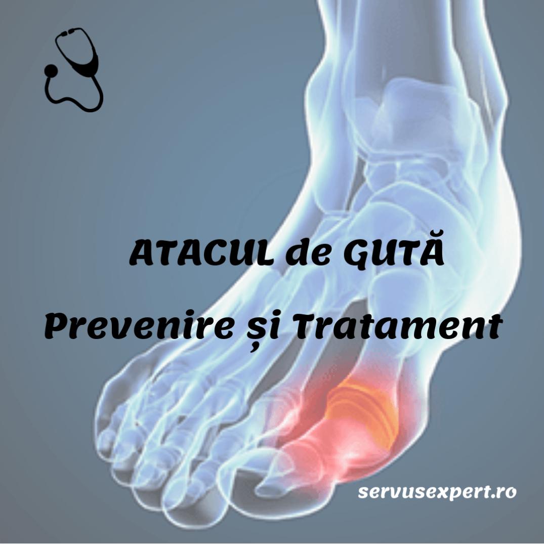 tratament complet al artrozei cel mai eficient tratament pentru artroza șoldului