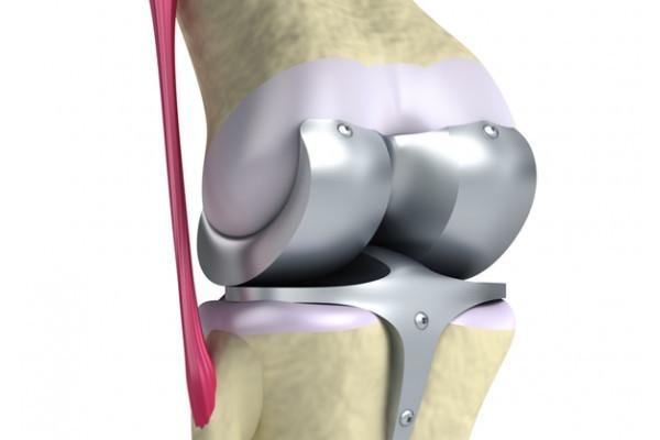 unde puteți vindeca artroza genunchiului