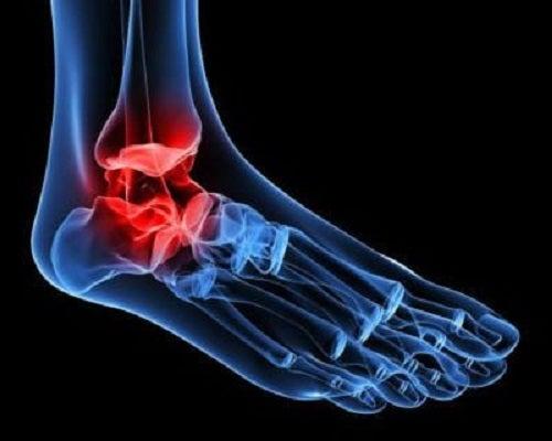 unguent pentru osteoartroza articulației gleznei tratamentul artritei scafoide