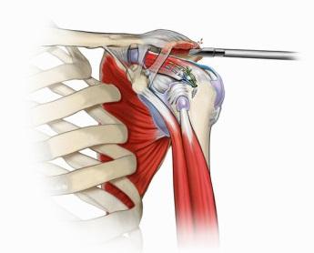 unguente după rănirea articulației umărului cum să tratezi artrita de gradul întâi