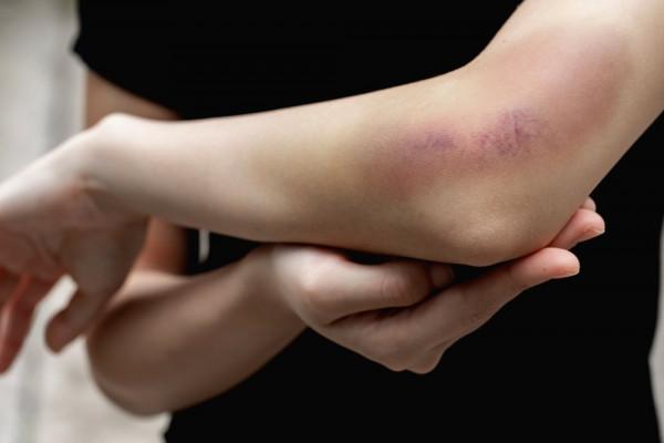care a vindecat artroza tratamentului mâinilor