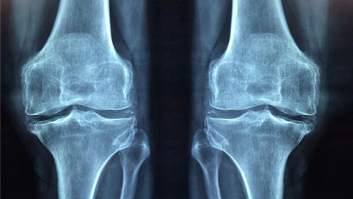 cum să tratezi artrita vag