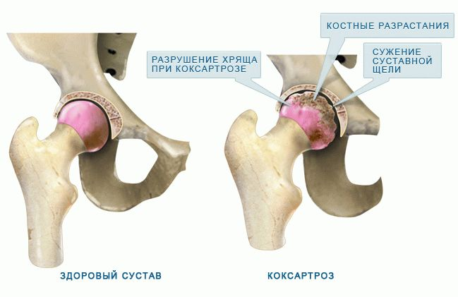 Tratament articular brovary)