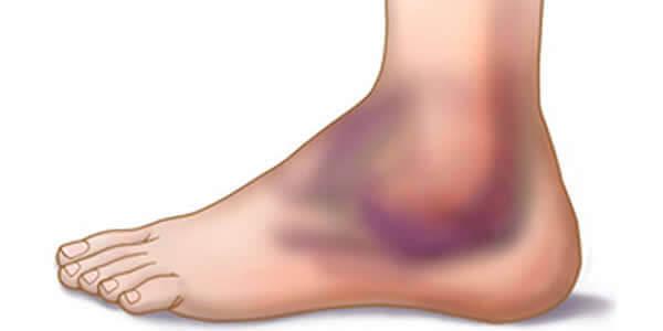 Artrita glezna postoperatorie