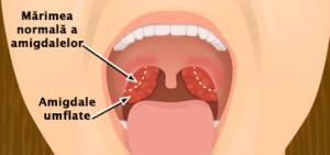 dureri articulare și amigdalectomie)