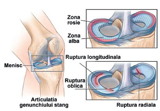 traumatism la meniscul genunchiului psoriazis artrita degetelor primele simptome
