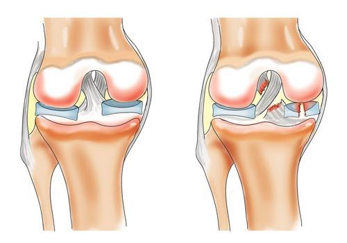 fizioterapie artroza