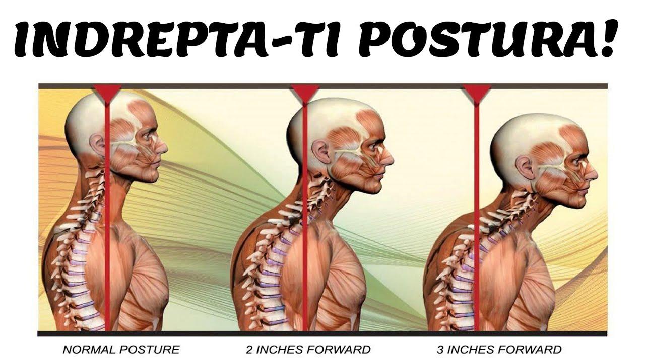 cum se tratează osteochondroza unguentului lombar