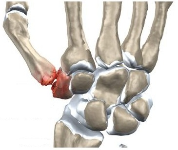 durere și umflare în articulația degetului