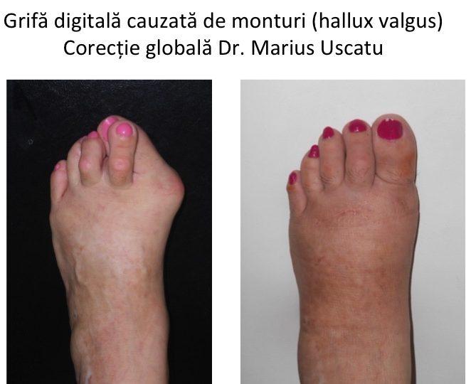 afectarea articulației faciale de ce rănesc articulațiile degetelor de pe mâini