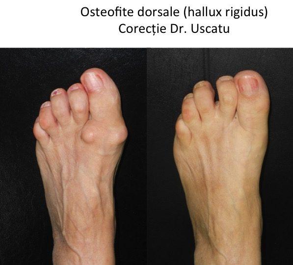 ce vindecă artroza piciorului
