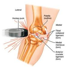 osteochondroza juvenilă a genunchiului