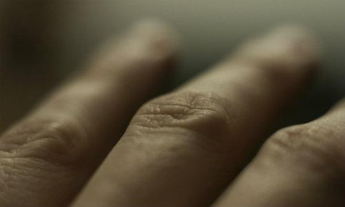 dureri articulare și erupții pe mâini)