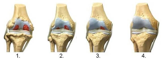 Artroza- definiție, simptome, tratament - Semne inițiale ale tratamentului cu artroza șoldului