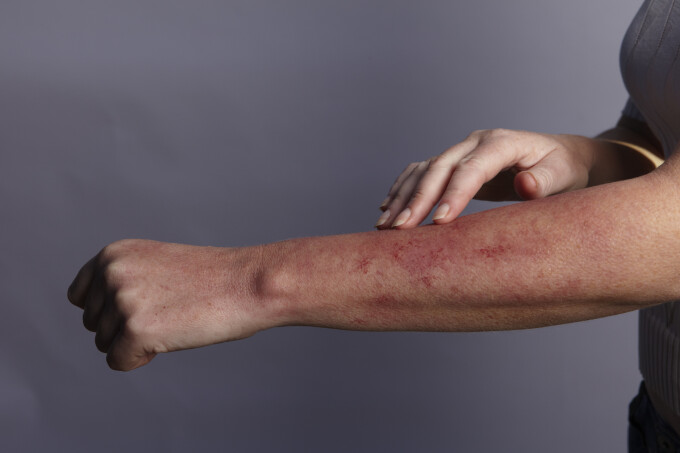 erupții cutanate ale pielii