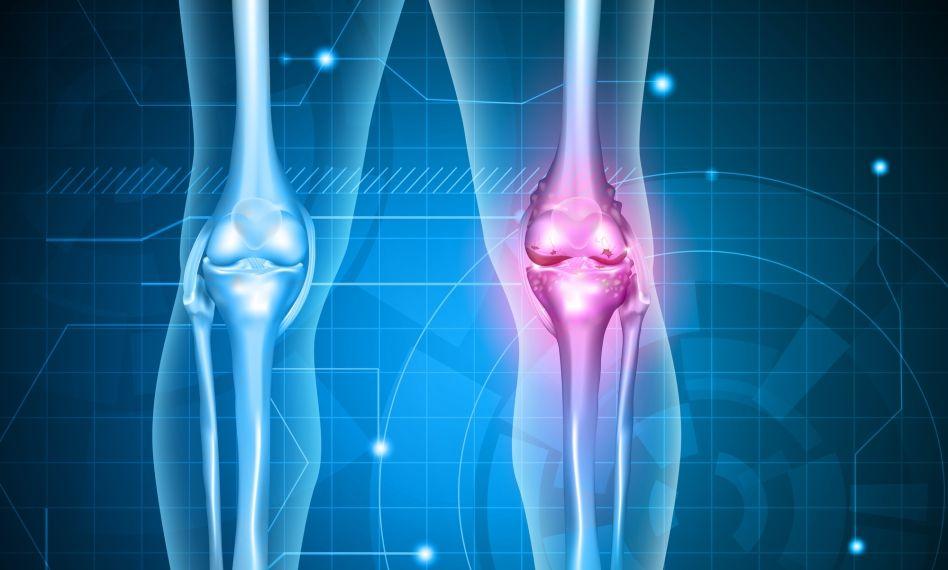 bila cu artroza genunchiului