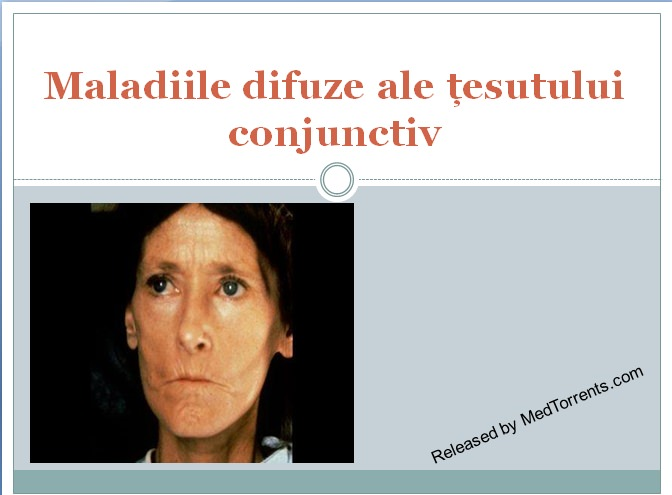 afectarea țesutului conjunctiv în bolile reumatice