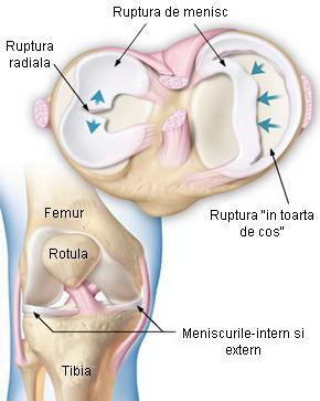 afectarea meniscului cronic la articulația genunchiului stâng