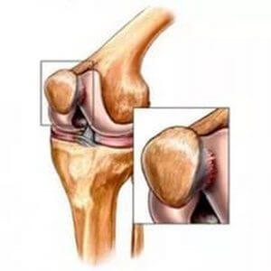 Tratament articular ozokerit