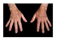 boli sistemice cu dureri articulare)