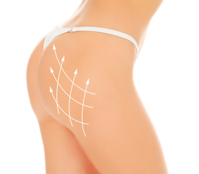 cum să tratezi o articulație în zona feselor unguent arabesc din articulații