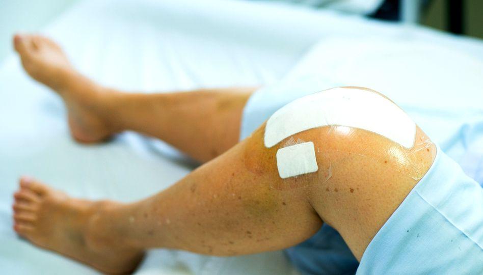 Aparat pentru dureri la nivelul genunchiului, Artrita genunchiului
