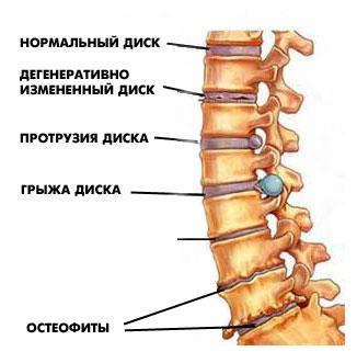 calmante pentru osteochondroza coloanei vertebrale lombare